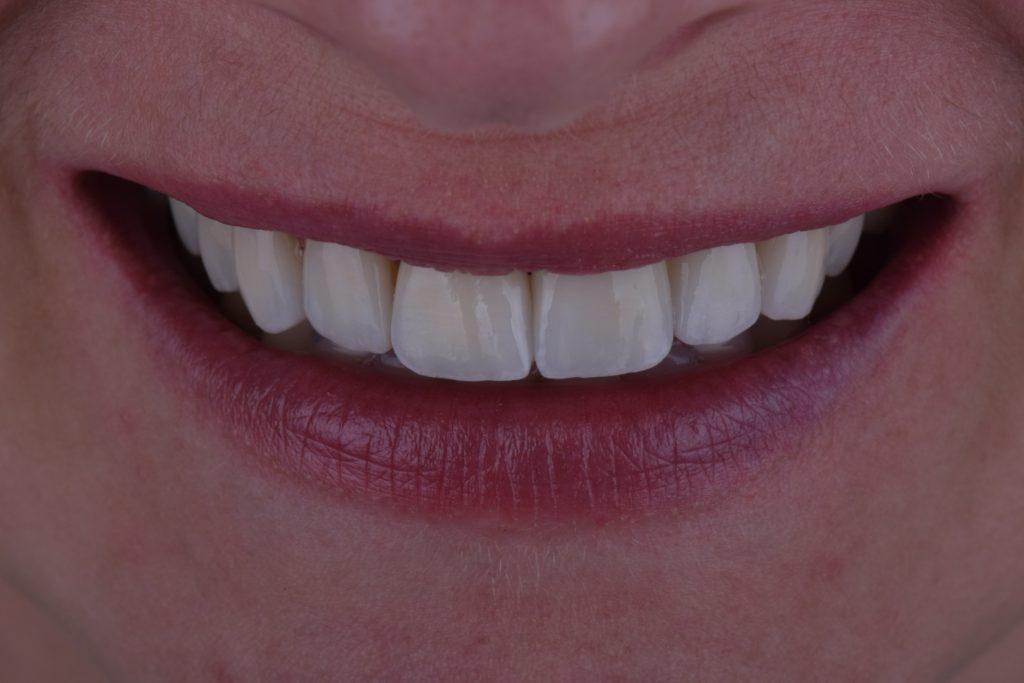 Протезування зубів львів