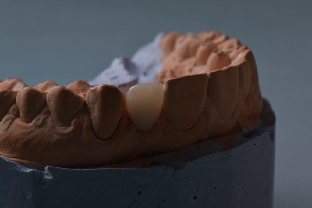 коронки львів протезування зубів
